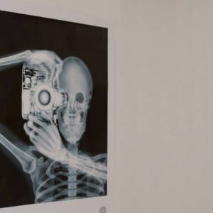 How to become a radiological and imaging nurse